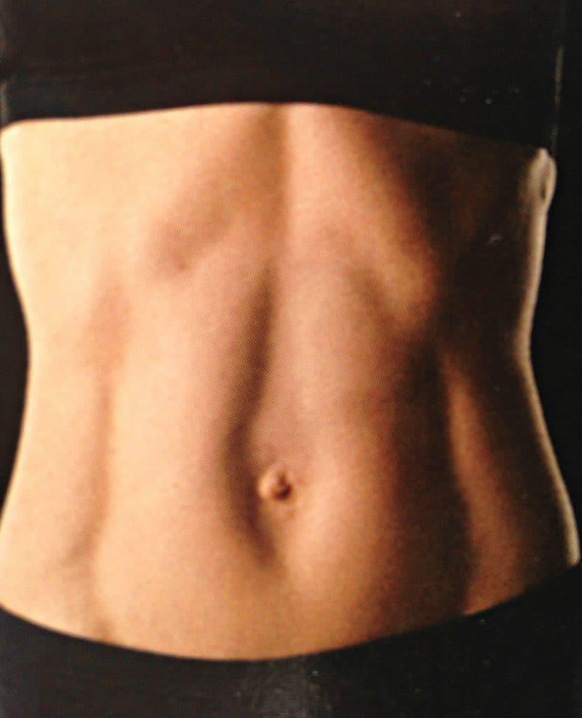 Delte mavemuskler (rectus diastase) på kvinde