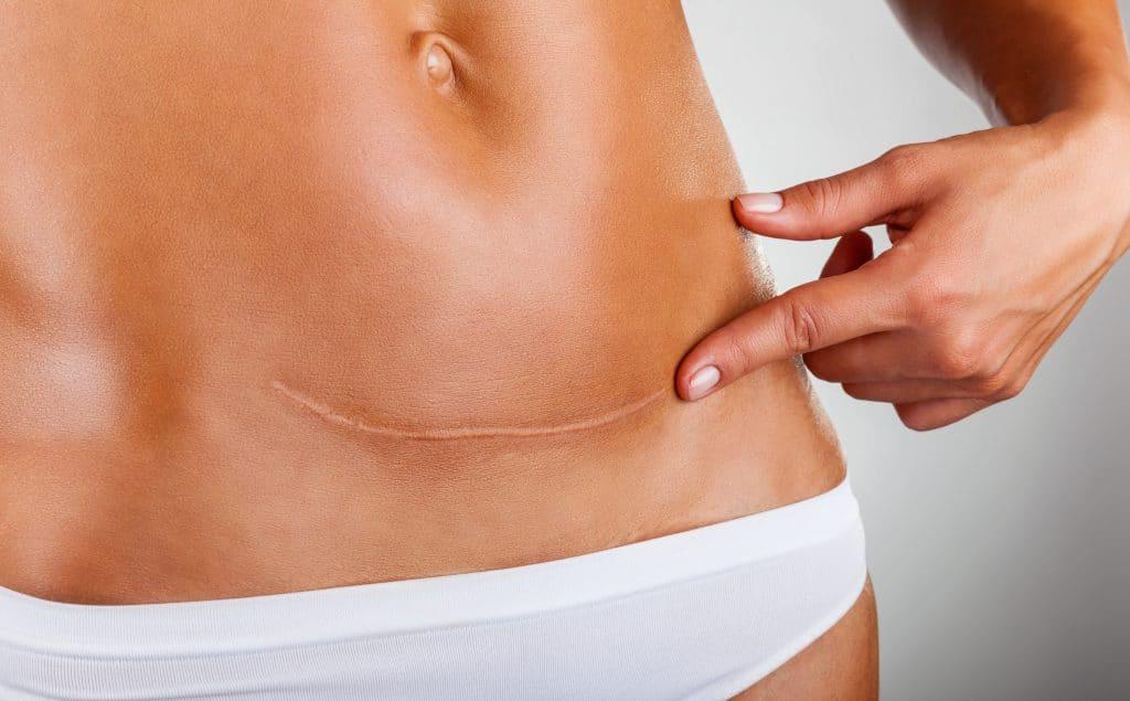 mave med ar fra kejsersnit