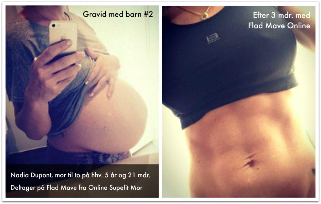 Kvinde viser sin mave efter hun har haft delte mavemuskler, rectus diastase, og har trænet med Superfit Mor's Flad Mave Online