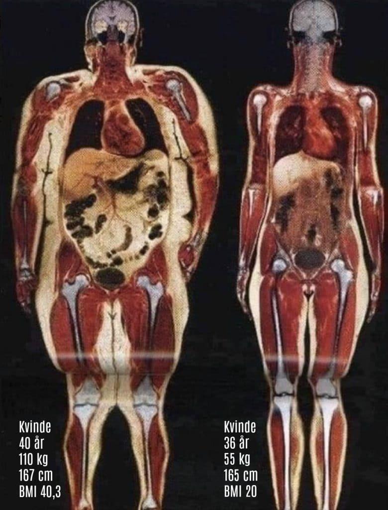 Fedt inde i kroppen og mellem organerne gør det særlig farligt at være overvægtig