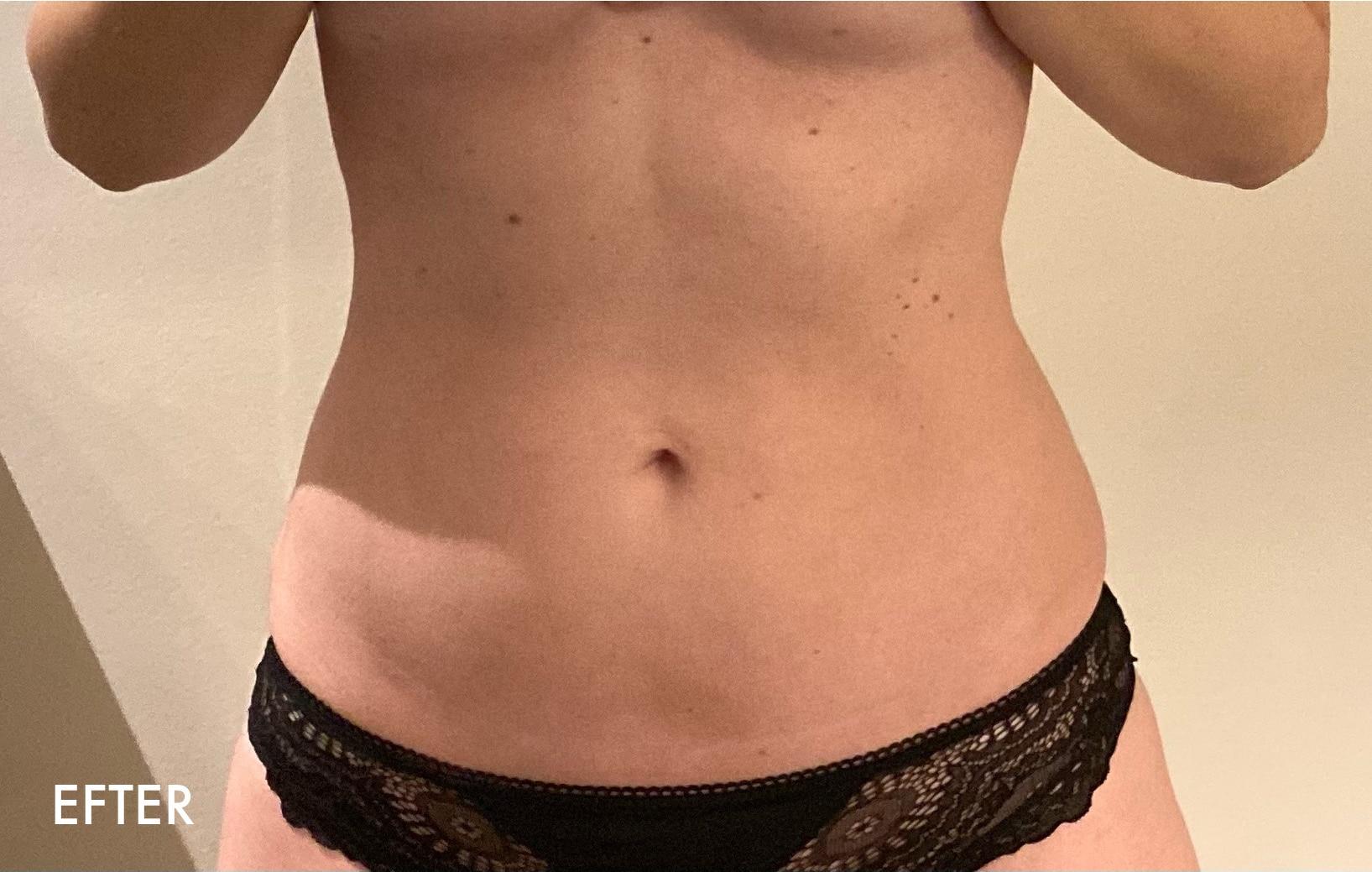 Deltager på Flad Mave Online fra Superfit Mor viser sit flotte resultat af mavetræningen